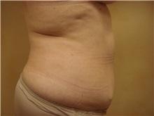 Liposuction Before Photo by Richard Greco, MD; Savannah, GA - Case 31895
