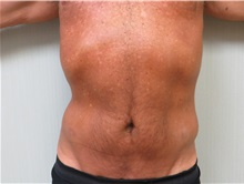 Liposuction After Photo by Richard Greco, MD; Savannah, GA - Case 31905