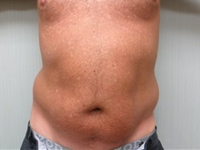 Liposuction Before Photo by Richard Greco, MD; Savannah, GA - Case 31905