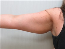 Liposuction Before Photo by Richard Greco, MD; Savannah, GA - Case 31906