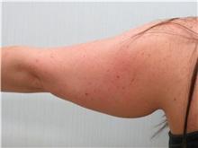 Liposuction Before Photo by Richard Greco, MD; Savannah, GA - Case 31906