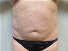 Liposuction After Photo by Richard Greco, MD; Savannah, GA - Case 31907