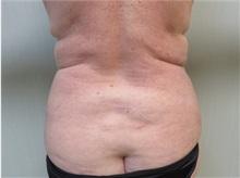 Liposuction After Photo by Richard Greco, MD; Savannah, GA - Case 31907