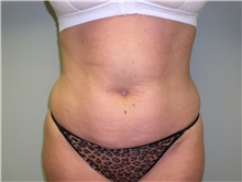 Liposuction Before Photo by Richard Greco, MD; Savannah, GA - Case 31908