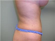 Liposuction After Photo by Richard Greco, MD; Savannah, GA - Case 31908