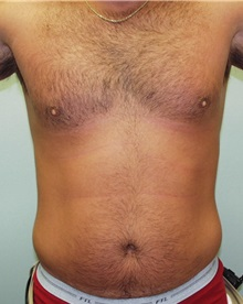 Liposuction After Photo by Richard Greco, MD; Savannah, GA - Case 31909