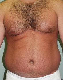Liposuction Before Photo by Richard Greco, MD; Savannah, GA - Case 31909