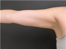 Liposuction After Photo by Richard Greco, MD; Savannah, GA - Case 31910