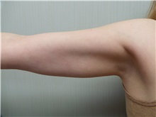Liposuction Before Photo by Richard Greco, MD; Savannah, GA - Case 31910