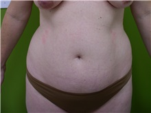 Liposuction Before Photo by Richard Greco, MD; Savannah, GA - Case 31911