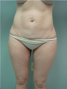 Liposuction After Photo by Richard Greco, MD; Savannah, GA - Case 31912