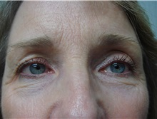 Eyelid Surgery After Photo by Richard Greco, MD; Savannah, GA - Case 31914