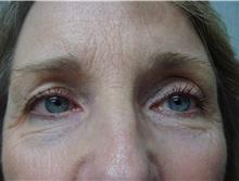 Eyelid Surgery After Photo by Richard Greco, MD; Savannah, GA - Case 31914