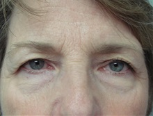 Eyelid Surgery Before Photo by Richard Greco, MD; Savannah, GA - Case 31914
