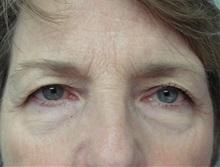 Eyelid Surgery Before Photo by Richard Greco, MD; Savannah, GA - Case 31914