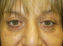 Eyelid Surgery After Photo by Richard Greco, MD; Savannah, GA - Case 31915