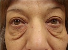Eyelid Surgery Before Photo by Richard Greco, MD; Savannah, GA - Case 31915