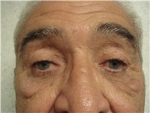 Eyelid Surgery After Photo by Richard Greco, MD; Savannah, GA - Case 31916