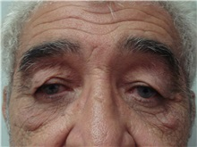Eyelid Surgery Before Photo by Richard Greco, MD; Savannah, GA - Case 31916