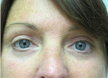Eyelid Surgery After Photo by Richard Greco, MD; Savannah, GA - Case 31917