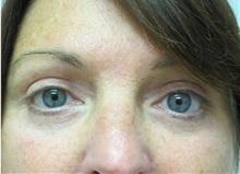 Eyelid Surgery After Photo by Richard Greco, MD; Savannah, GA - Case 31917