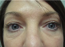 Eyelid Surgery Before Photo by Richard Greco, MD; Savannah, GA - Case 31917