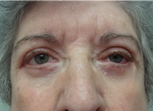 Eyelid Surgery After Photo by Richard Greco, MD; Savannah, GA - Case 31918