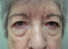 Eyelid Surgery Before Photo by Richard Greco, MD; Savannah, GA - Case 31918