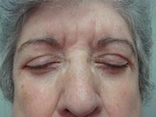 Eyelid Surgery After Photo by Richard Greco, MD; Savannah, GA - Case 31918