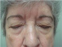 Eyelid Surgery Before Photo by Richard Greco, MD; Savannah, GA - Case 31918