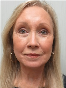Facelift After Photo by Richard Greco, MD; Savannah, GA - Case 36407