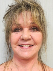Facelift After Photo by Richard Greco, MD; Savannah, GA - Case 36408