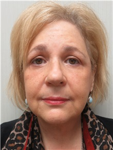 Facelift After Photo by Richard Greco, MD; Savannah, GA - Case 36413