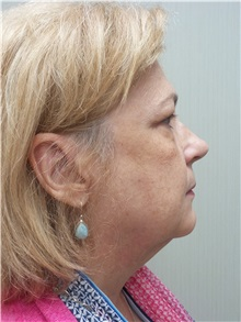 Facelift Before Photo by Richard Greco, MD; Savannah, GA - Case 36413
