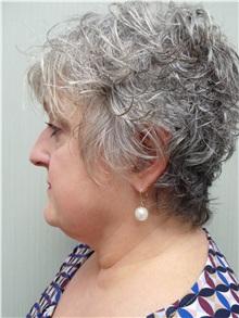Facelift Before Photo by Richard Greco, MD; Savannah, GA - Case 36415
