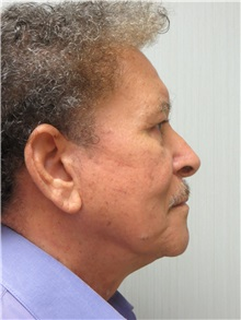 Facelift After Photo by Richard Greco, MD; Savannah, GA - Case 36416