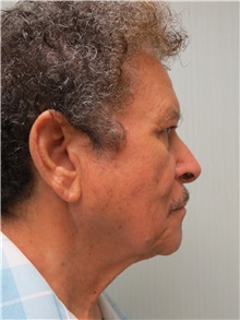 Facelift Before Photo by Richard Greco, MD; Savannah, GA - Case 36416