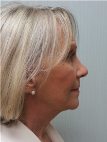 Facelift After Photo by Richard Greco, MD; Savannah, GA - Case 36417