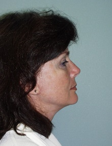 Facelift After Photo by Richard Greco, MD; Savannah, GA - Case 36418