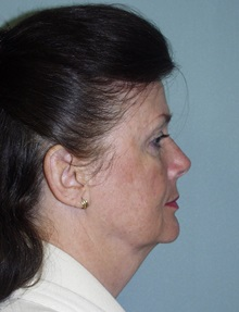 Facelift Before Photo by Richard Greco, MD; Savannah, GA - Case 36418