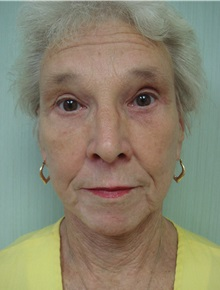Facelift After Photo by Richard Greco, MD; Savannah, GA - Case 36420