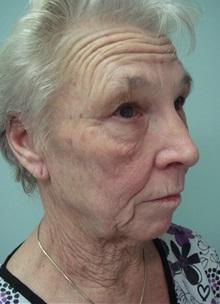 Facelift Before Photo by Richard Greco, MD; Savannah, GA - Case 36420