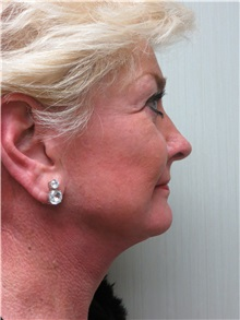 Facelift After Photo by Richard Greco, MD; Savannah, GA - Case 36421
