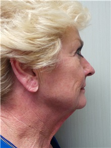 Facelift Before Photo by Richard Greco, MD; Savannah, GA - Case 36421