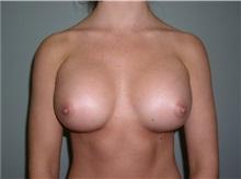 Breast Augmentation After Photo by Richard Greco, MD; Savannah, GA - Case 6898
