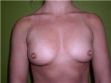 Breast Augmentation Before Photo by Richard Greco, MD; Savannah, GA - Case 6898