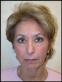 Facelift Before Photo by Leonard Miller, MD; Brookline, MA - Case 25001
