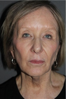 Facelift Before Photo by Leonard Miller, MD; Brookline, MA - Case 41161