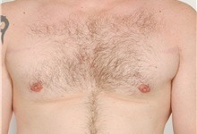 Male Breast Reduction After Photo by Paul LoVerme, MD, FACS; Verona, NJ - Case 28710