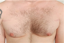 Male Breast Reduction Before Photo by Paul LoVerme, MD, FACS; Verona, NJ - Case 28710